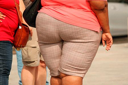 obezite sismanligin tanimi nedenleri